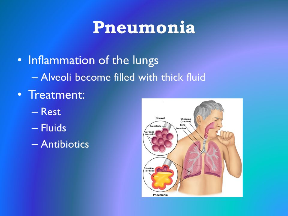 Pneumonia Inflammation of the lungs Treatment: