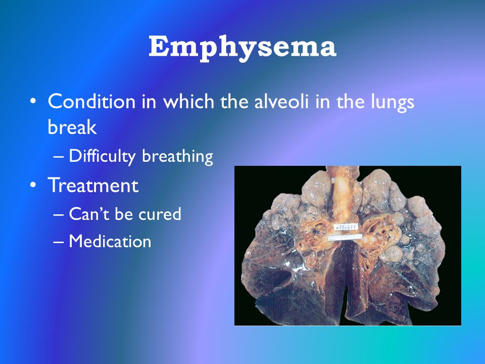 Emphysema Condition in which the alveoli in the lungs break Treatment