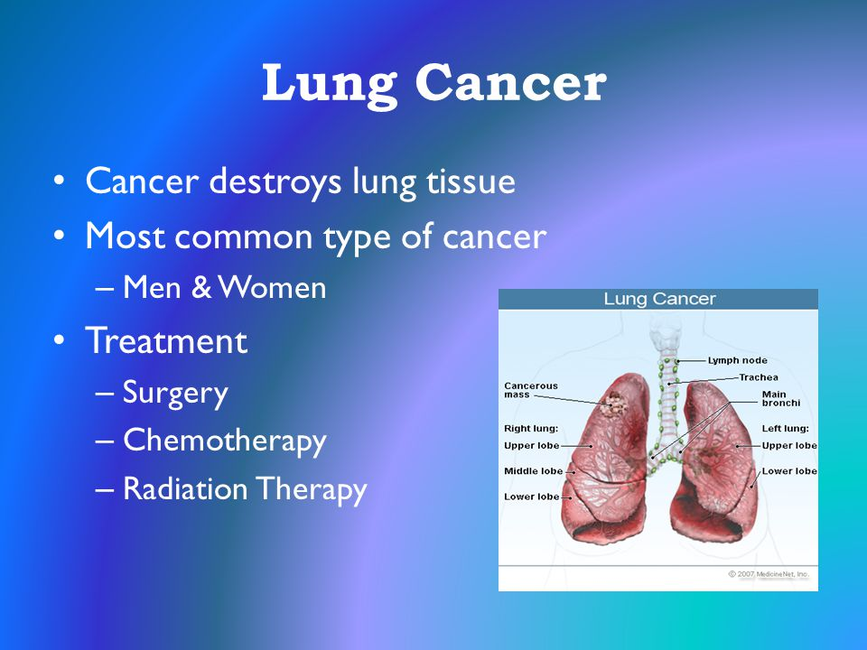 Lung Cancer Cancer destroys lung tissue Most common type of cancer