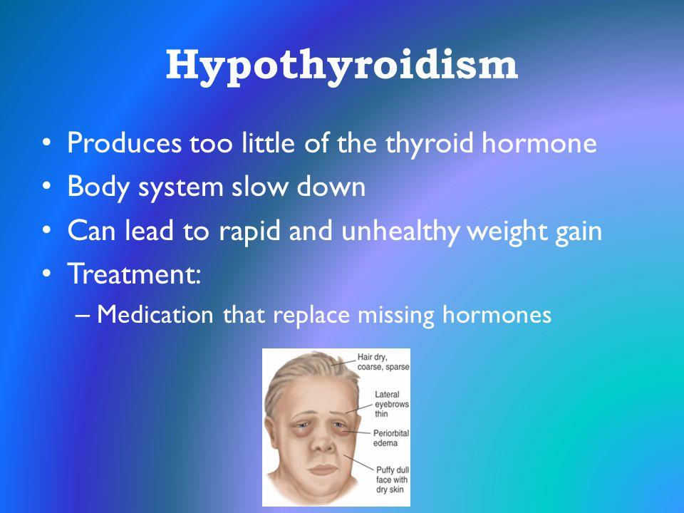 Hypothyroidism Produces too little of the thyroid hormone