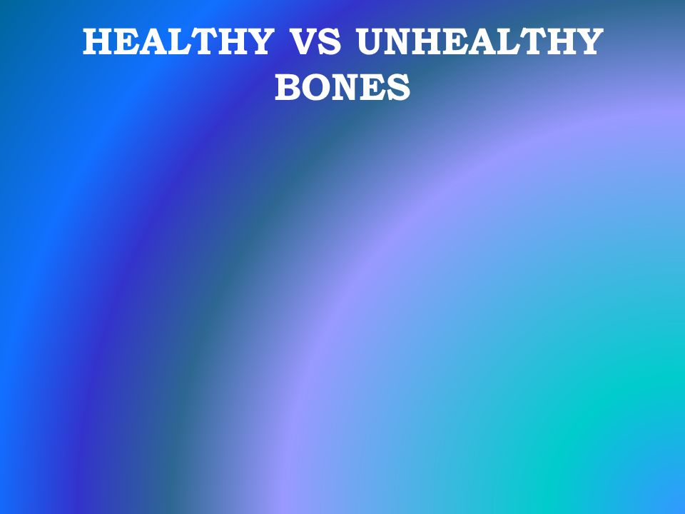 HEALTHY VS UNHEALTHY BONES
