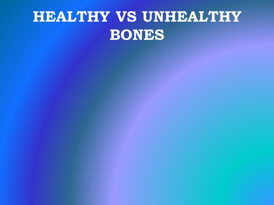 HEALTHY VS UNHEALTHY BONES