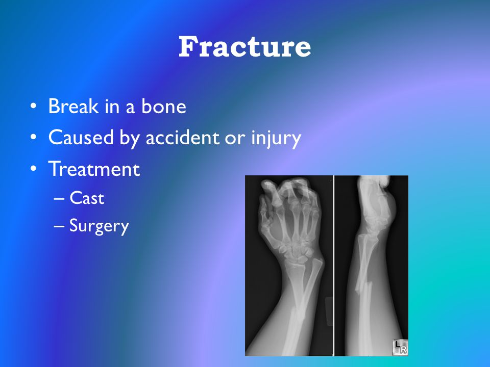 Fracture Break in a bone Caused by accident or injury Treatment Cast
