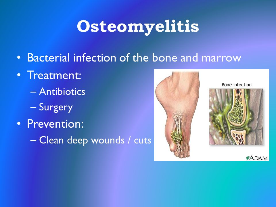 Osteomyelitis Bacterial infection of the bone and marrow Treatment: