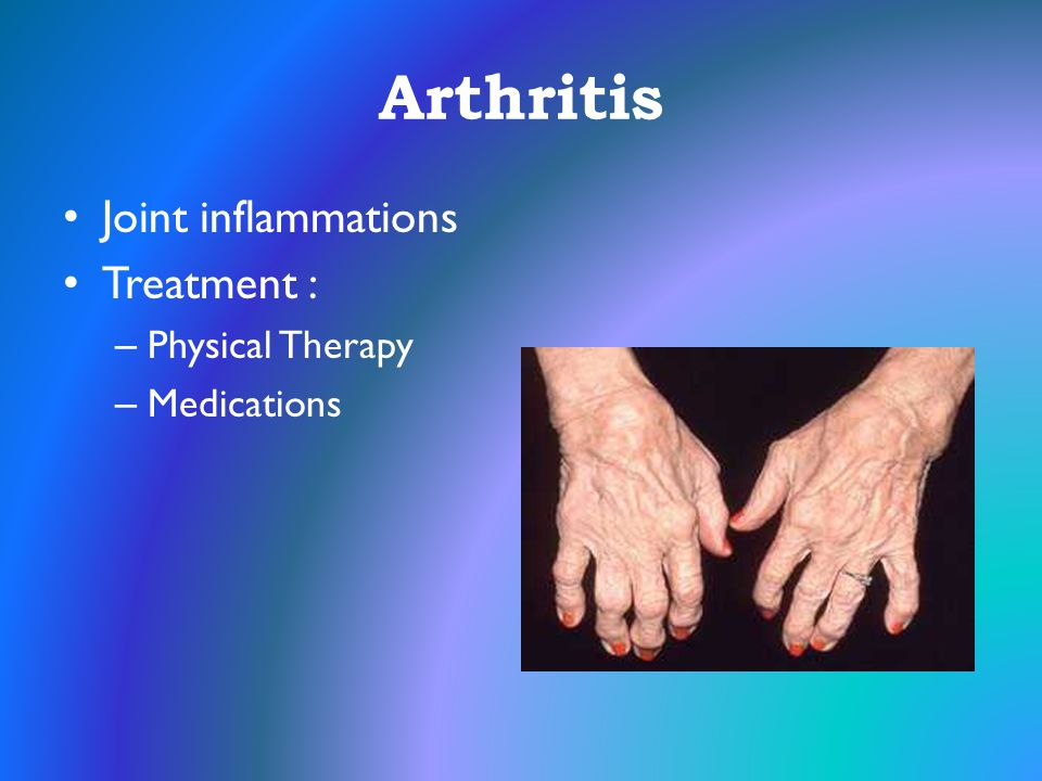 Arthritis Joint inflammations Treatment : Physical Therapy Medications