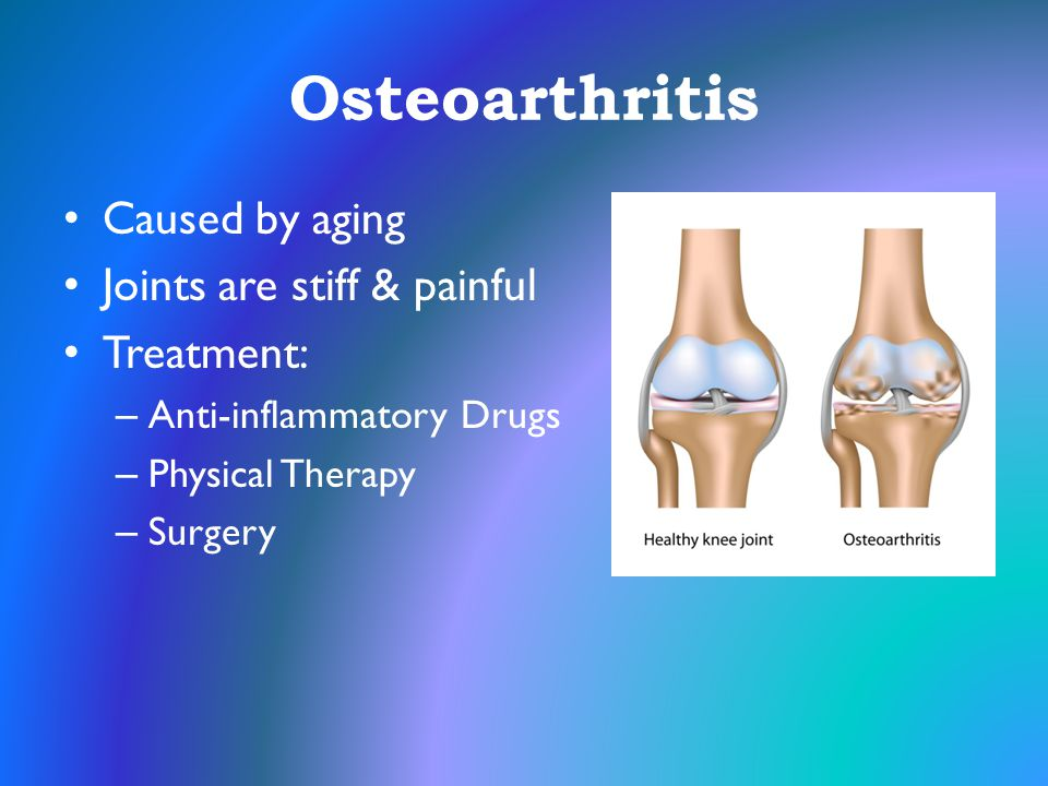 Osteoarthritis Caused by aging Joints are stiff & painful Treatment: