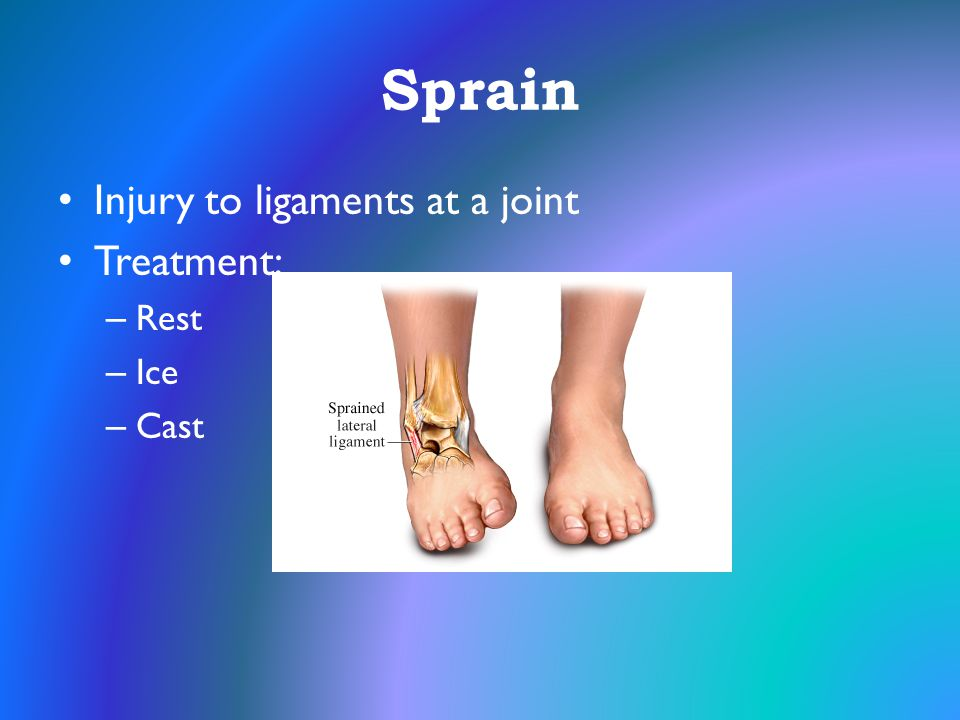 Sprain Injury to ligaments at a joint Treatment: Rest Ice Cast