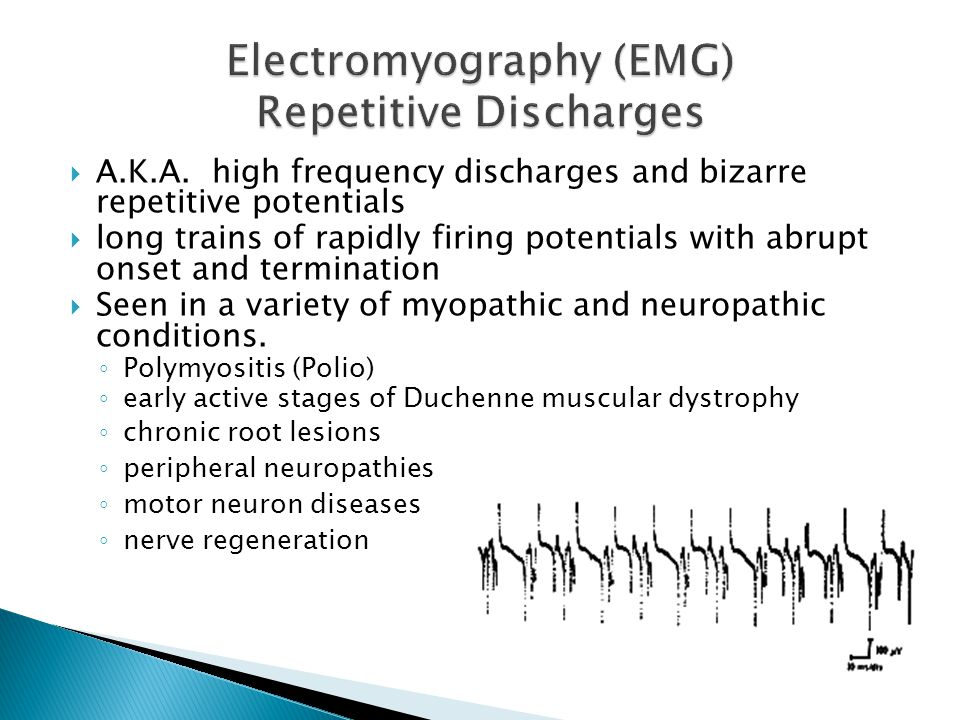 Electromyography (EMG) Repetitive Discharges