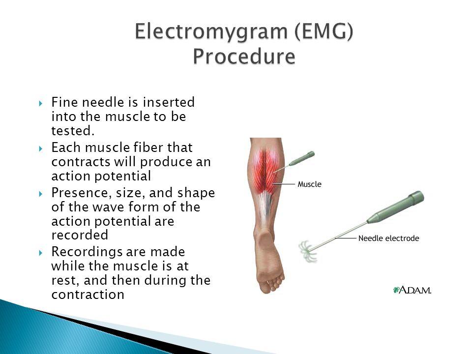 Electromygram (EMG) Procedure