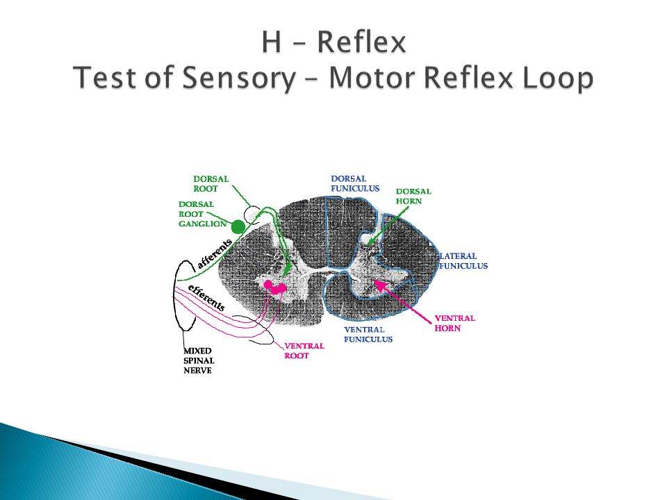 H – Reflex Test of Sensory – Motor Reflex Loop