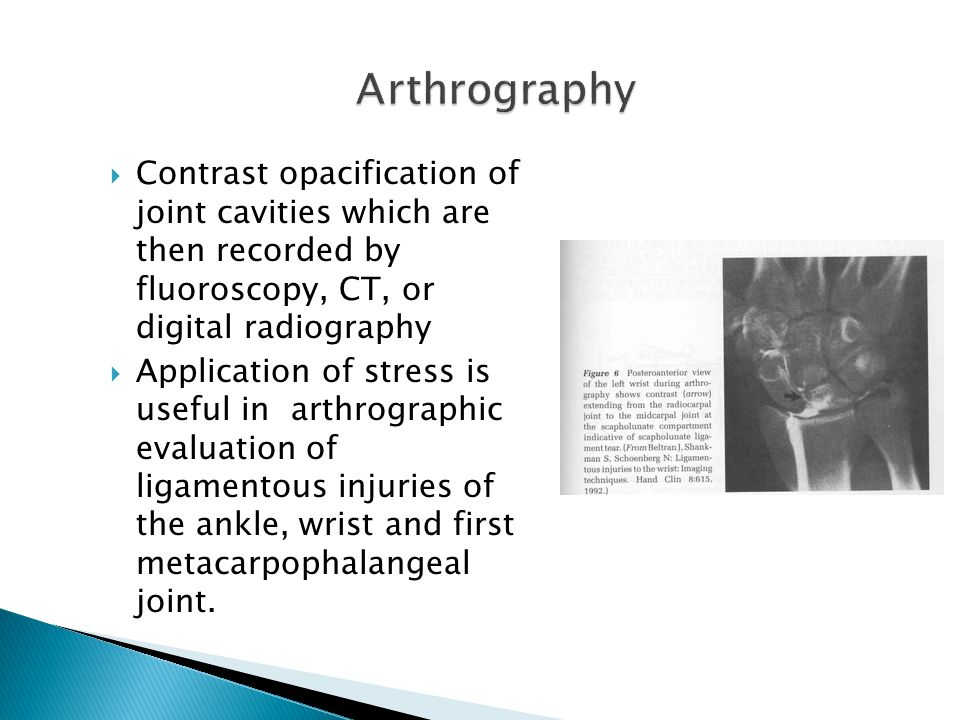 Arthrography Contrast opacification of joint cavities which are then recorded by fluoroscopy, CT, or digital radiography.