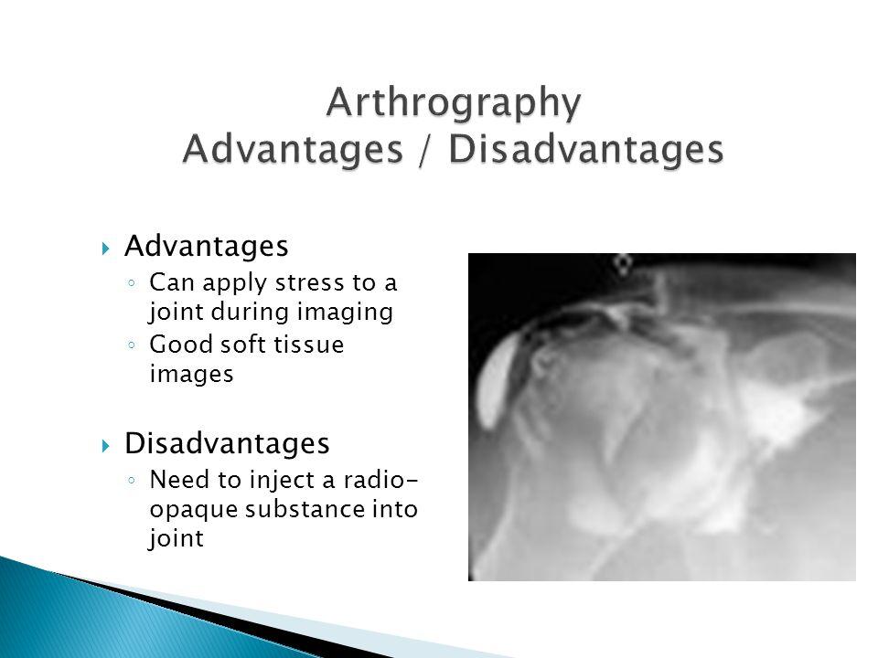 Arthrography Advantages / Disadvantages