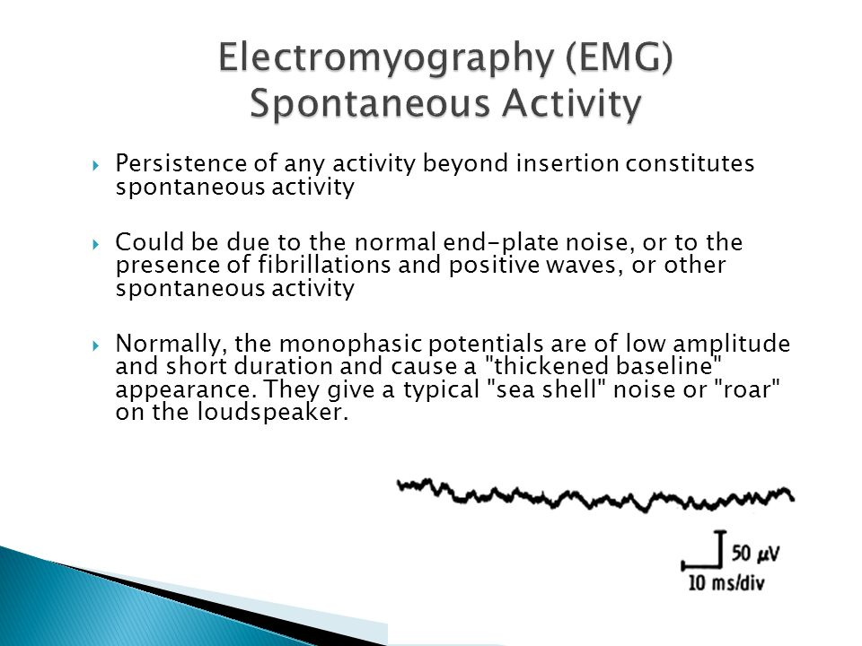Electromyography (EMG) Spontaneous Activity