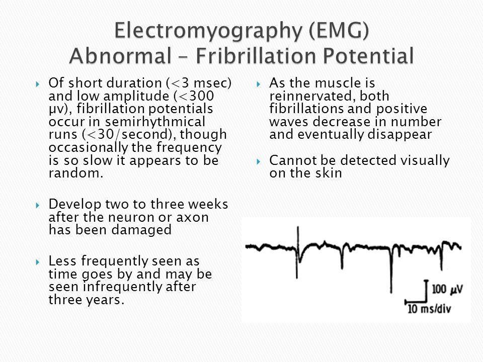 Electromyography (EMG) Abnormal – Fribrillation Potential