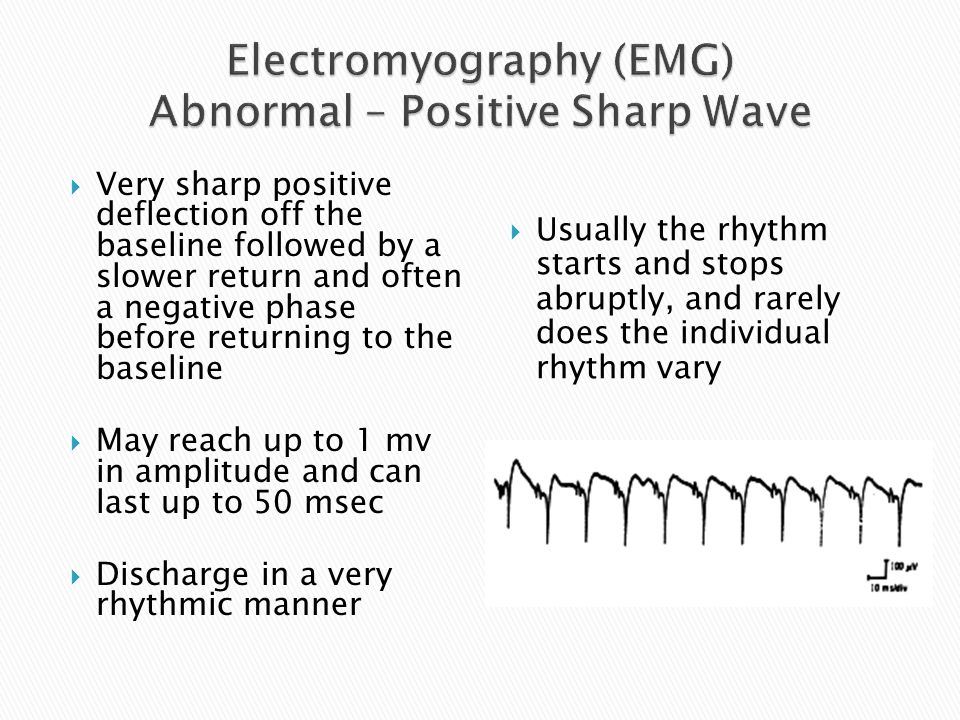 Electromyography (EMG) Abnormal – Positive Sharp Wave