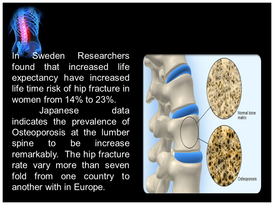 4/15/2017 In Sweden Researchers found that increased life expectancy have increased life time risk of hip fracture in women from 14% to 23%.