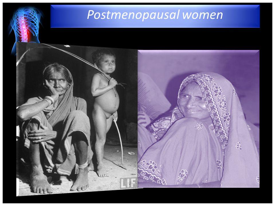 4/15/2017 Postmenopausal women