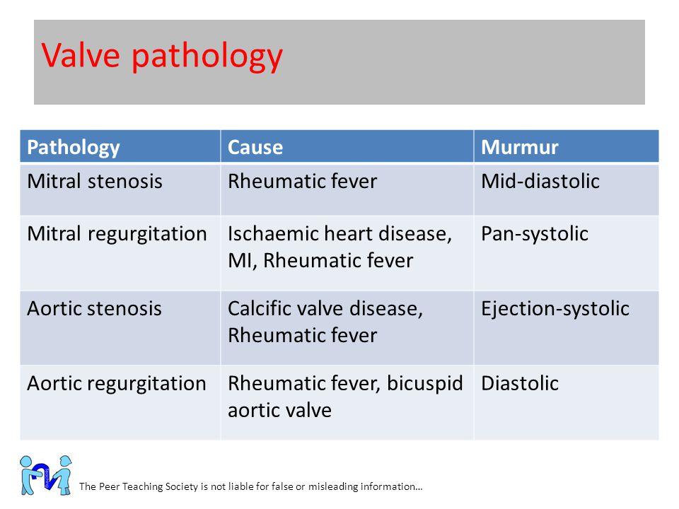 Valve pathology Pathology Cause Murmur Mitral stenosis Rheumatic fever