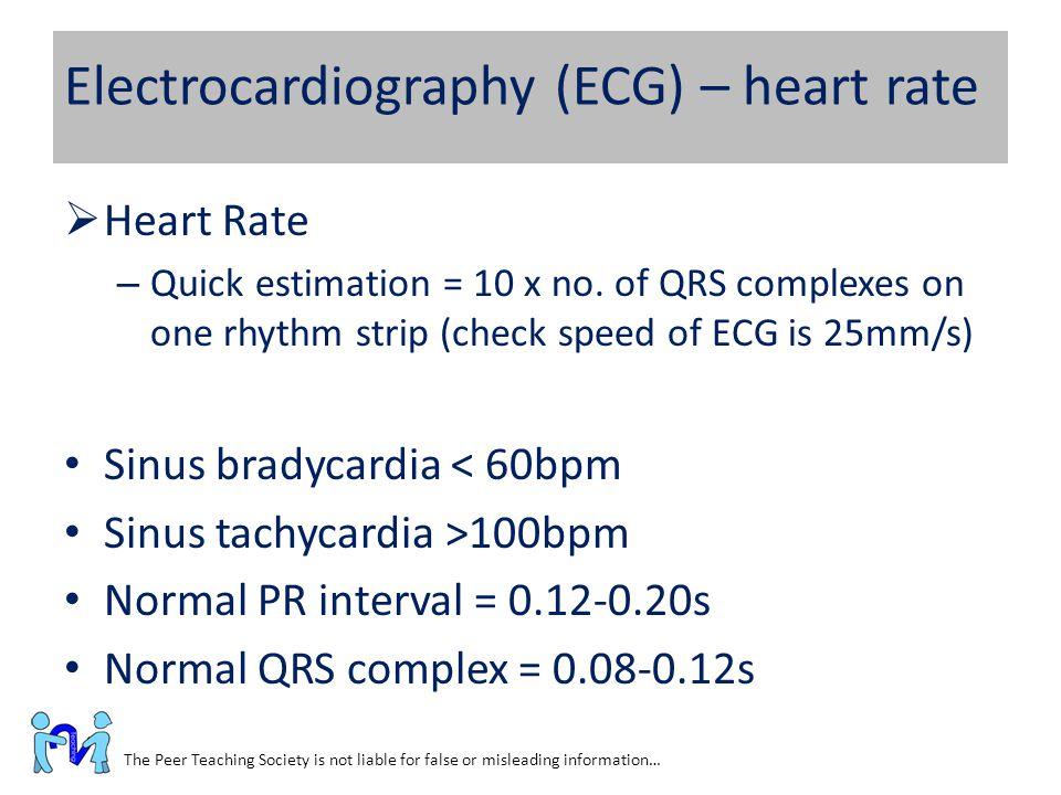 Electrocardiography (ECG) – heart rate