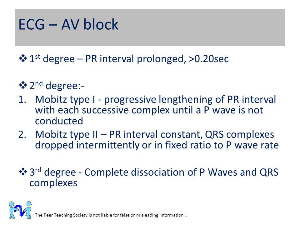 ECG – AV block 1st degree – PR interval prolonged, >0.20sec