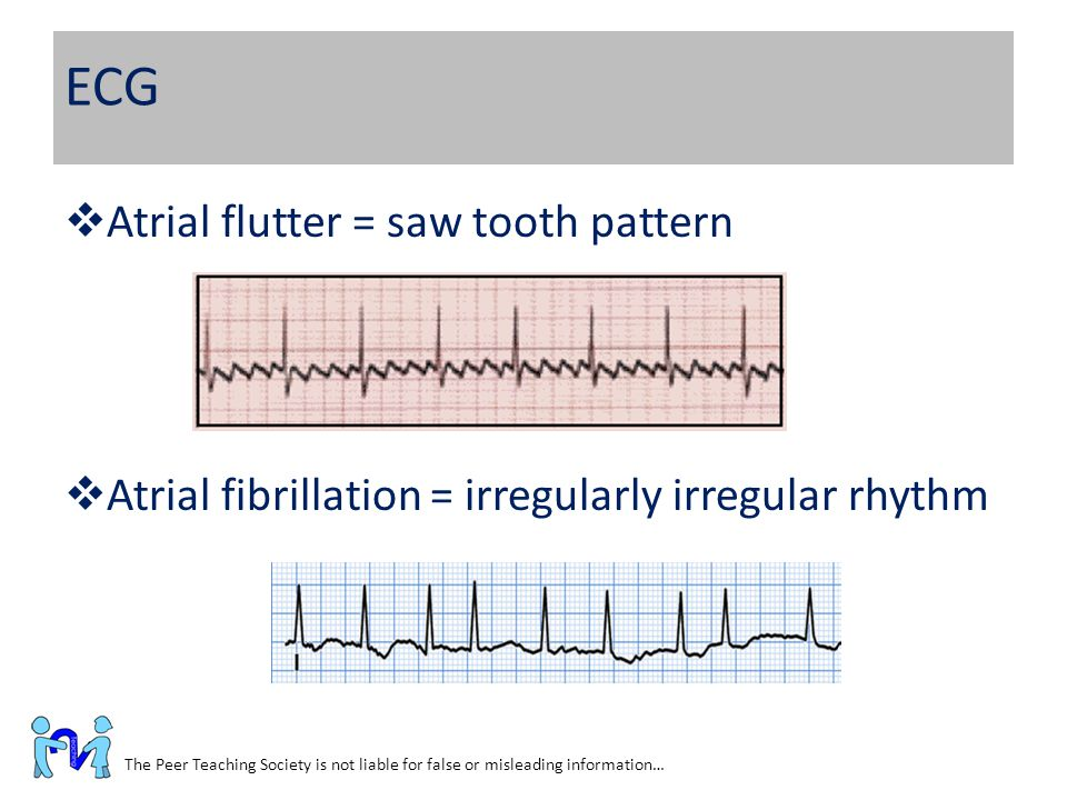 ECG Atrial flutter = saw tooth pattern