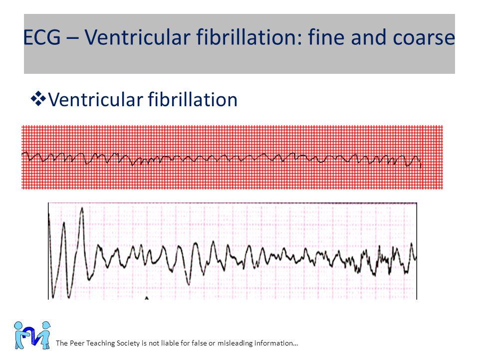 ECG – Ventricular fibrillation: fine and coarse