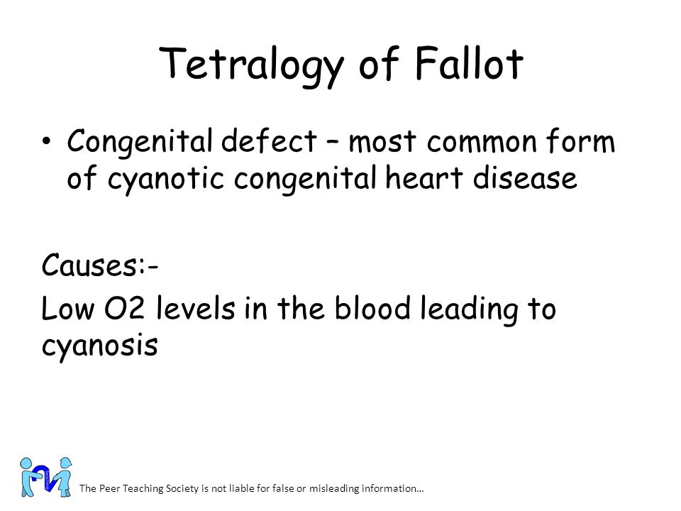Tetralogy of Fallot Congenital defect – most common form of cyanotic congenital heart disease. Causes:-