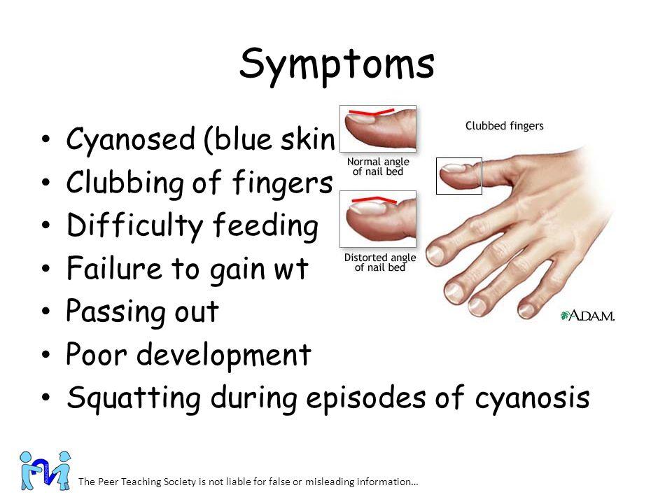 Symptoms Cyanosed (blue skin) Clubbing of fingers Difficulty feeding