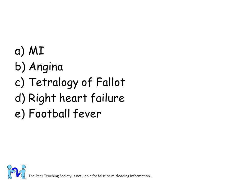 MI Angina Tetralogy of Fallot Right heart failure Football fever