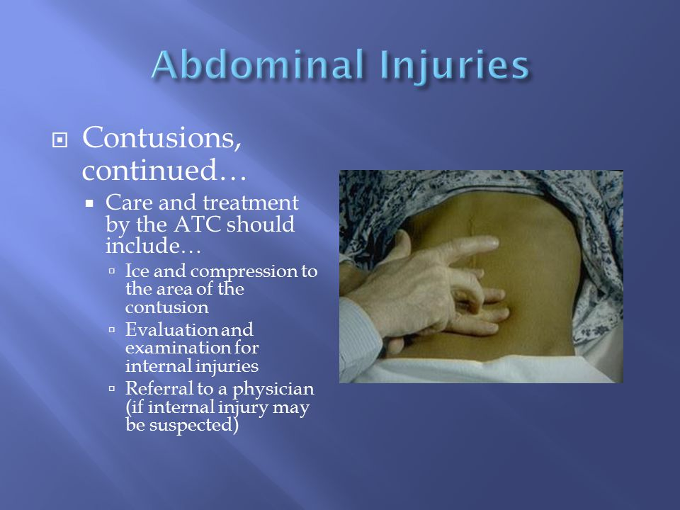 Abdominal Injuries Contusions, continued…
