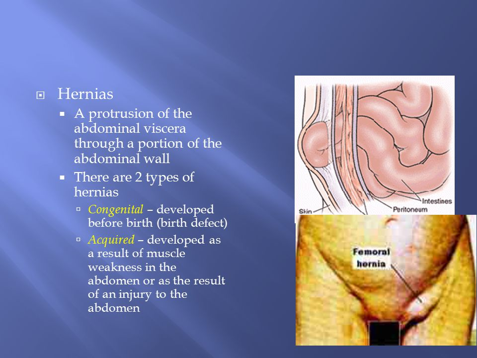 Hernias A protrusion of the abdominal viscera through a portion of the abdominal wall. There are 2 types of hernias.