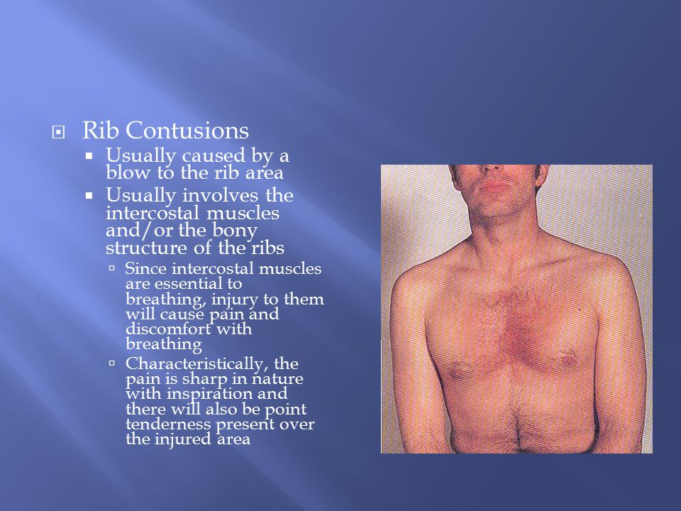 Rib Contusions Usually caused by a blow to the rib area