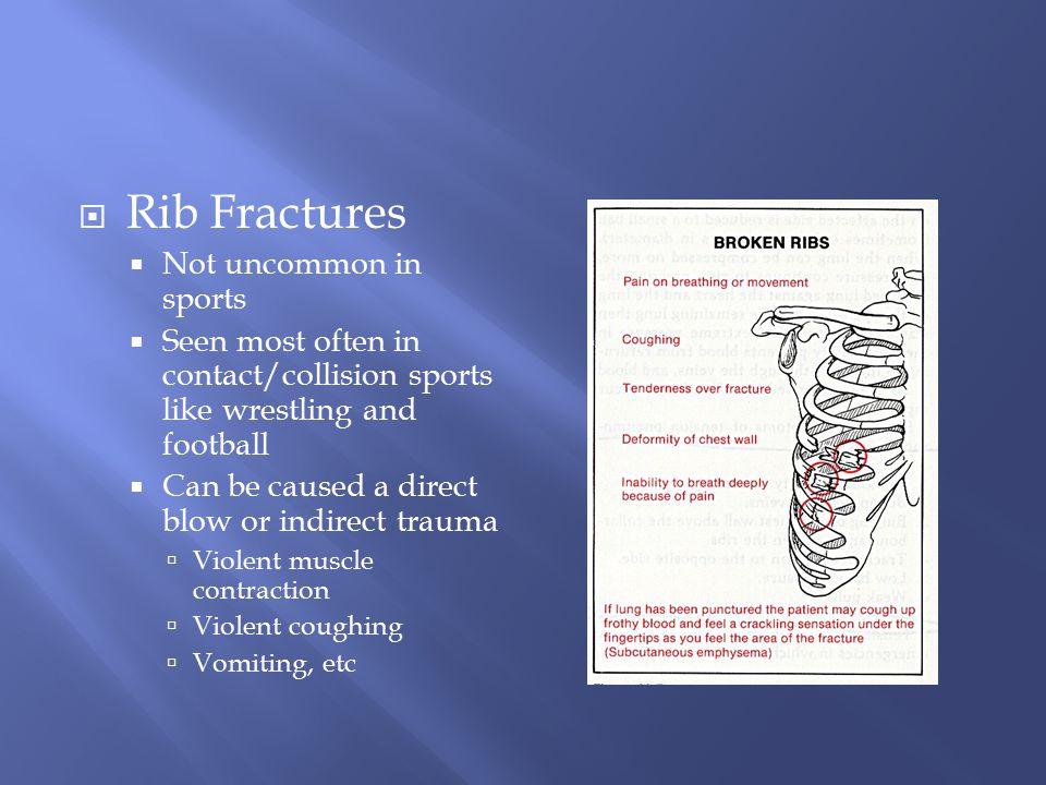 Rib Fractures Not uncommon in sports