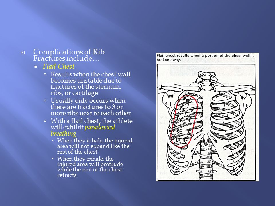 Complications of Rib Fractures include…