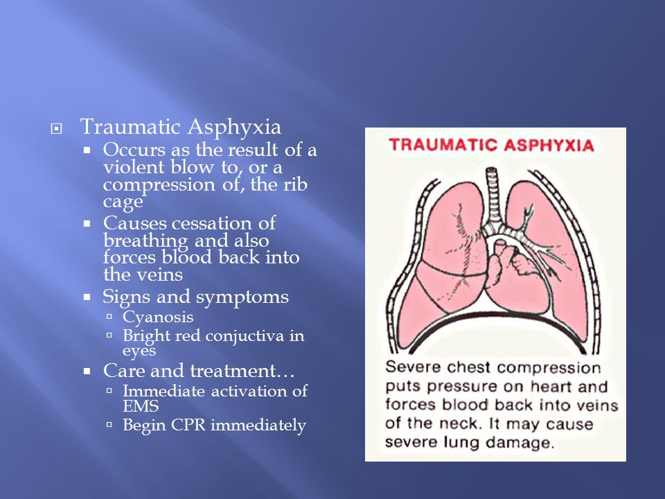 Traumatic Asphyxia Occurs as the result of a violent blow to, or a compression of, the rib cage.