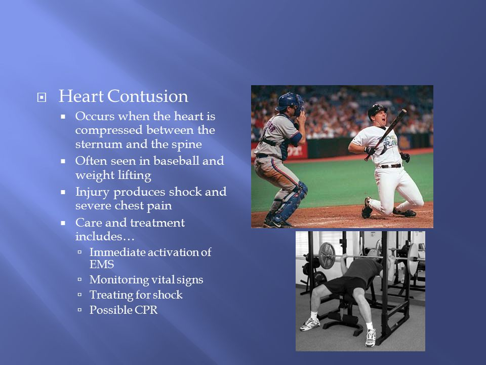 Heart Contusion Occurs when the heart is compressed between the sternum and the spine. Often seen in baseball and weight lifting.