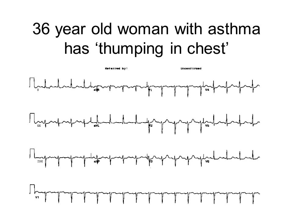 36 year old woman with asthma has 'thumping in chest'