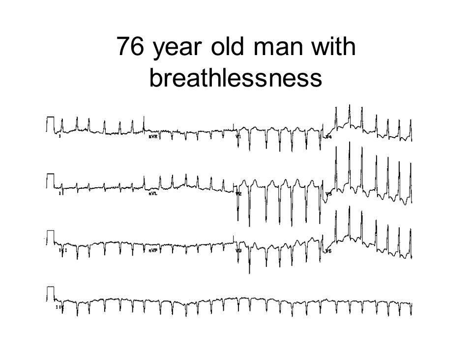 76 year old man with breathlessness