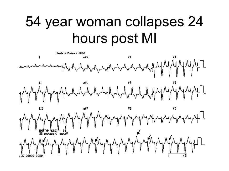 54 year woman collapses 24 hours post MI