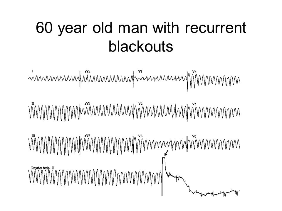 60 year old man with recurrent blackouts