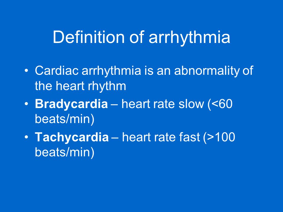 Definition of arrhythmia