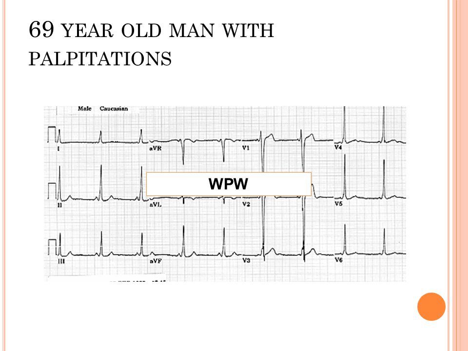 69 year old man with palpitations