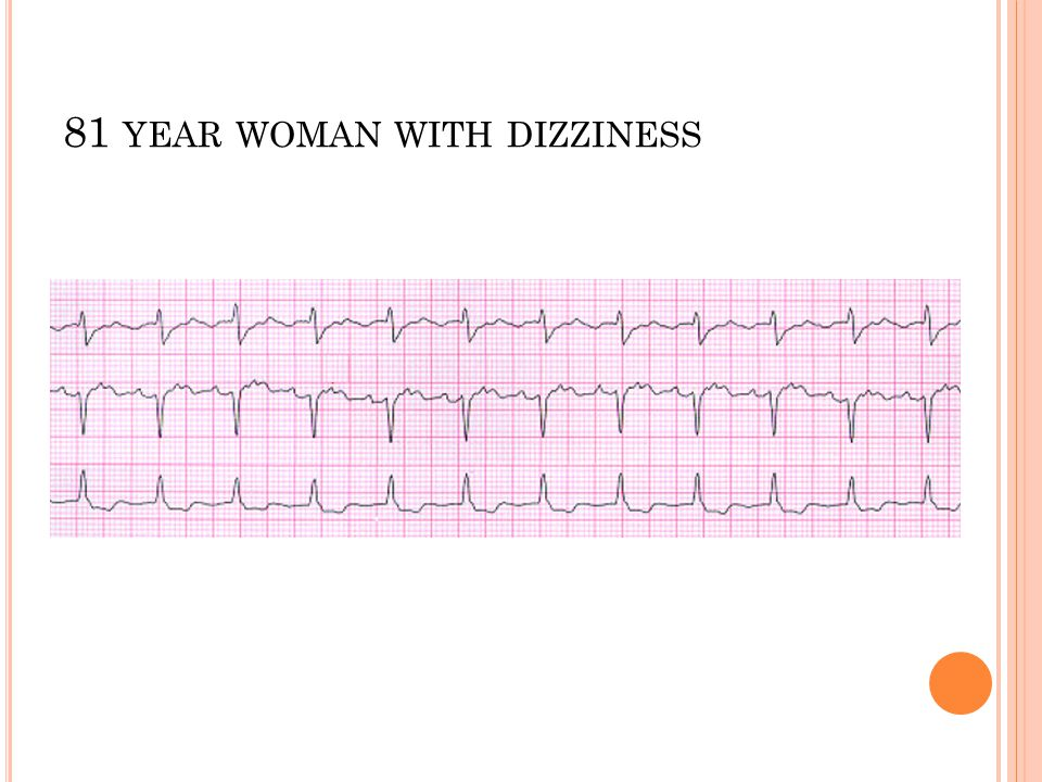 81 year woman with dizziness
