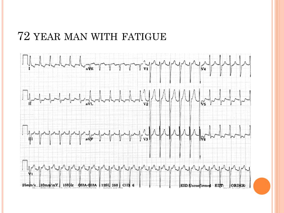 72 year man with fatigue