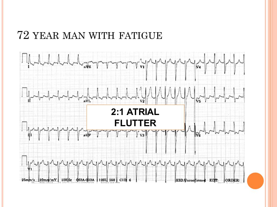 72 year man with fatigue 2:1 ATRIAL FLUTTER