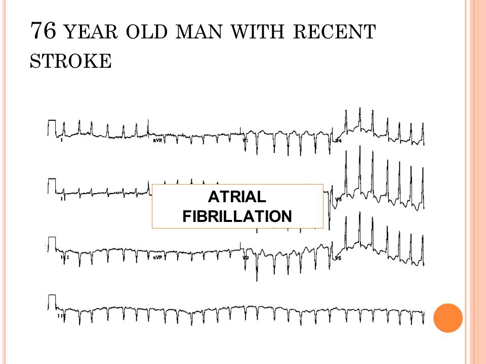 76 year old man with recent stroke