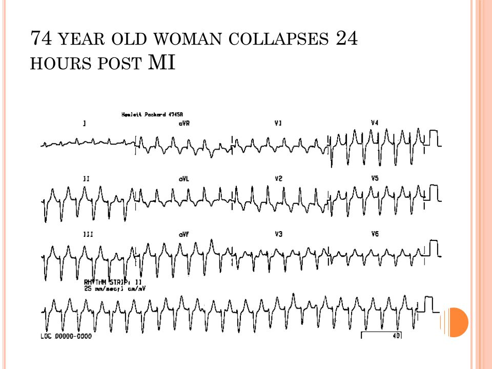 74 year old woman collapses 24 hours post MI