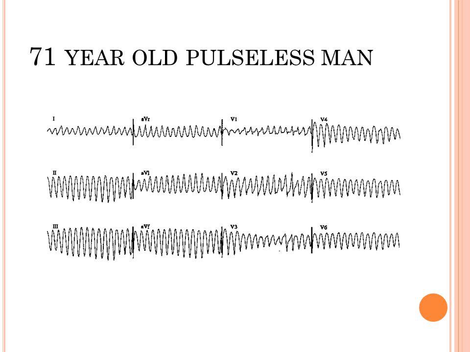 71 year old pulseless man