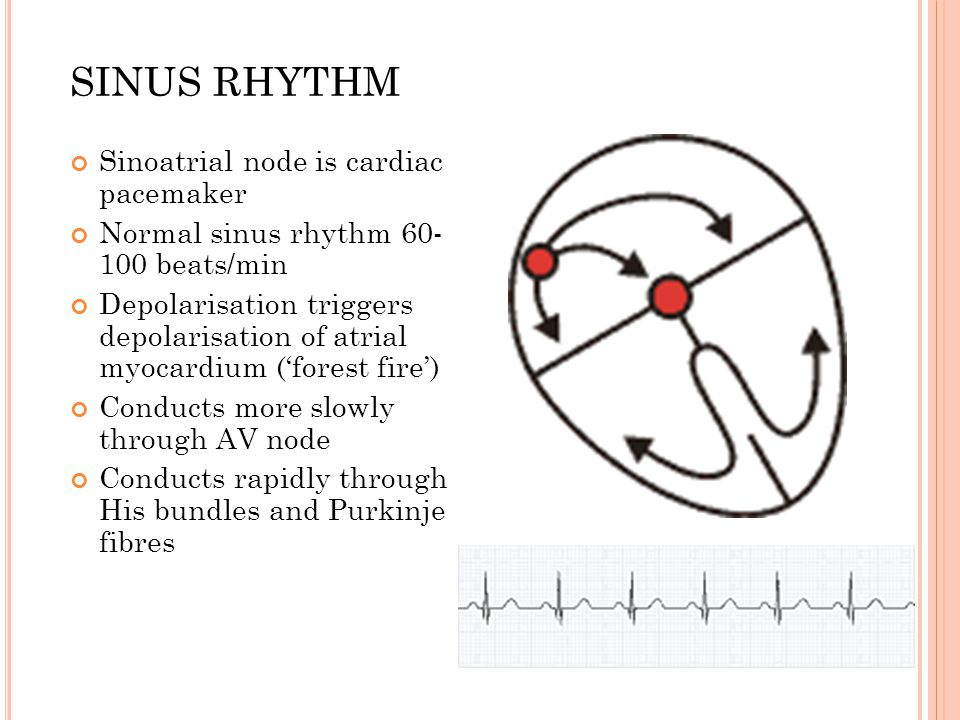 SINUS RHYTHM Sinoatrial node is cardiac pacemaker