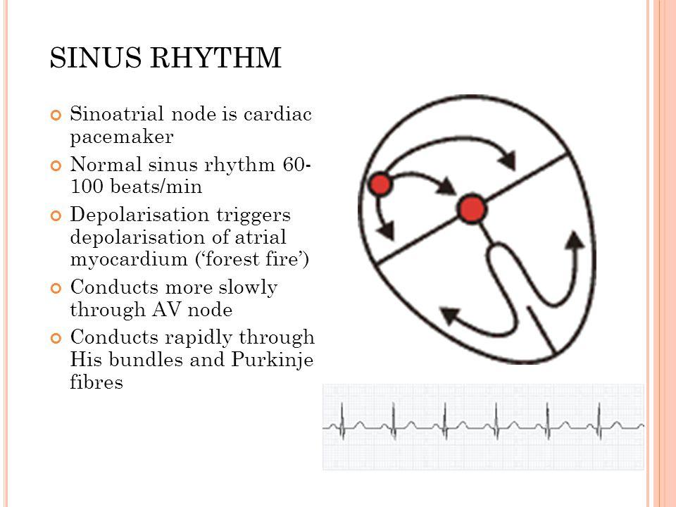 SINUS RHYTHM Sinoatrial node is cardiac pacemaker